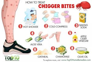 how to make a doctor note chigger bites x